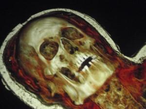 MONA - the David Walsh mummy